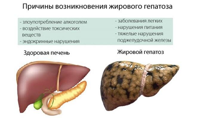 Печень Как Ее Лечить Диета. Как нужно питаться при заболеваниях печени — принцип диеты и меню на неделю