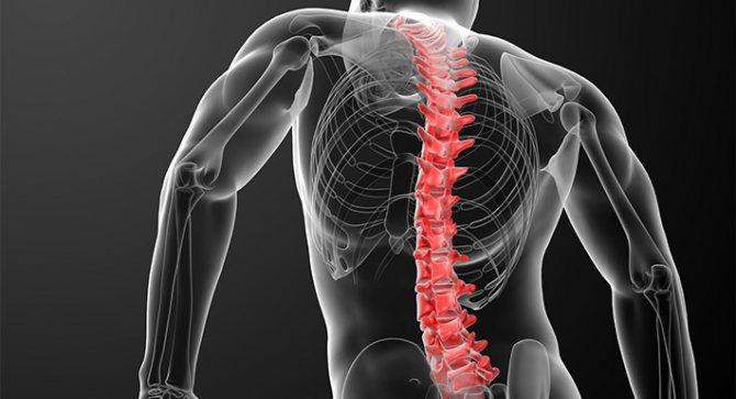 Спондилит — симптомы и лечение позвоночника. классификация недуга