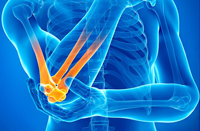 Ревматоидный артрит. причины, симптомы, диагностика