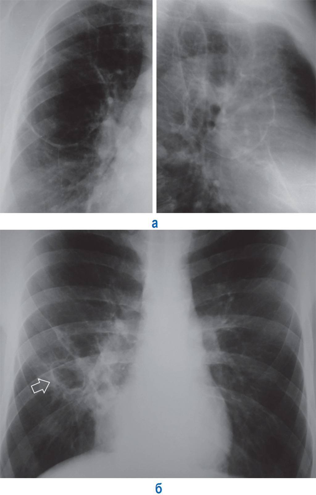 Туберкулез легких фото – виды снимков