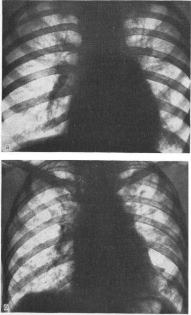 Пневмосклероз легких – что это такое? очаговый, диффузный пневмосклероз – лечение, продолжительность жизни