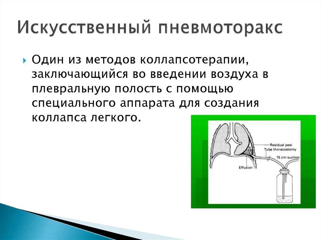 Коллапсотерапия | блокнот фтизиатра - туберкулез - страница 3