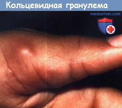 Чем опасна кольцевидная гранулема у детей. причины, симптомы и лечение кольцевидной гранулемы. какой врач лечит кольцевидную гранулему