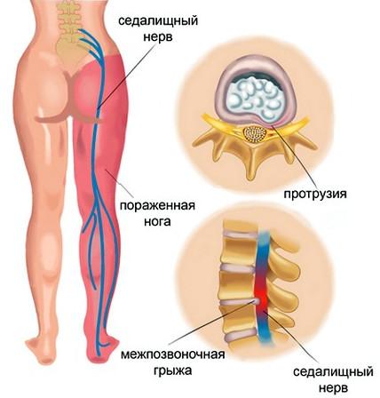 Лечение защемления нерва в пояснице - опасность защемления, диагностика, первая помощь, методы лечения