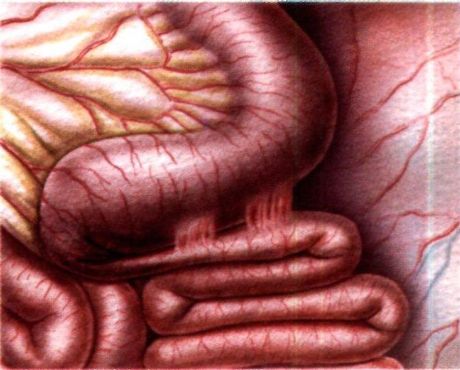 Спаечная болезнь кишечника: причины, диагностика и лечение