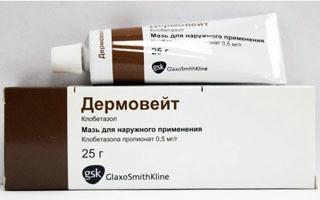 Дермовейт — действенная помощь в лечении псориаза