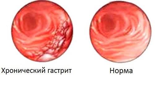Что такое бульбит желудка и как его вылечить