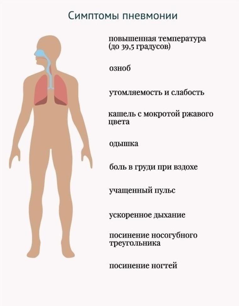 Особенности болевого синдрома при пневмонии