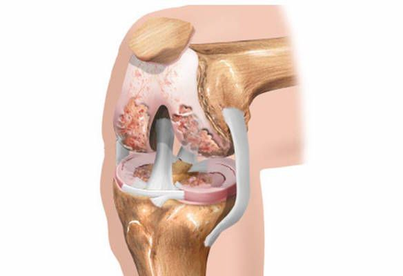 Диета при остеоартрозе коленного сустава 2 степени лечение