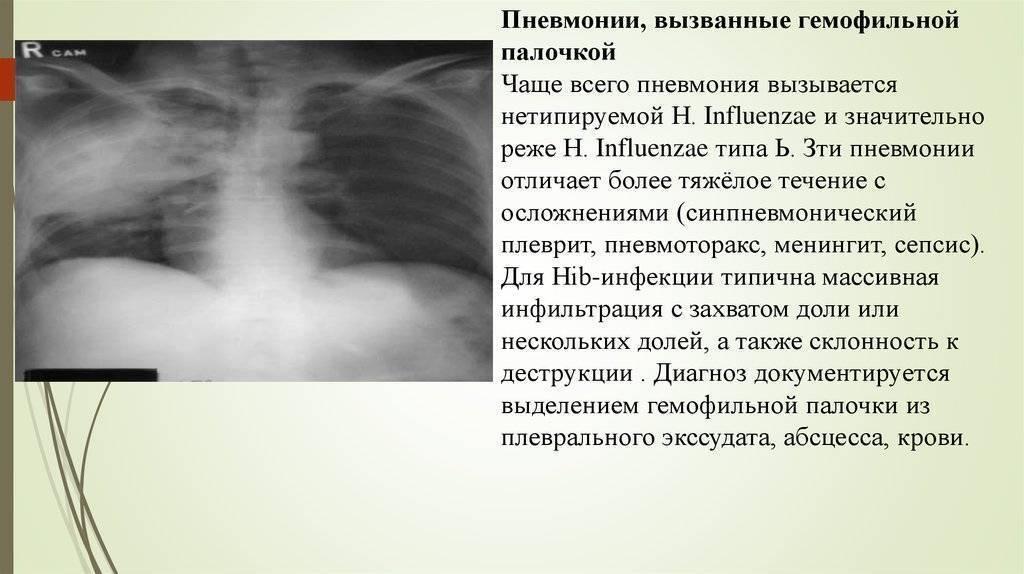 Пневмонит: отличие от пневмонии, причины, симптомы, принципы лечения