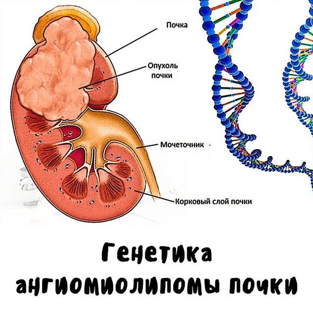 Ангиомиолипома: симптомы, лечение и диагностика