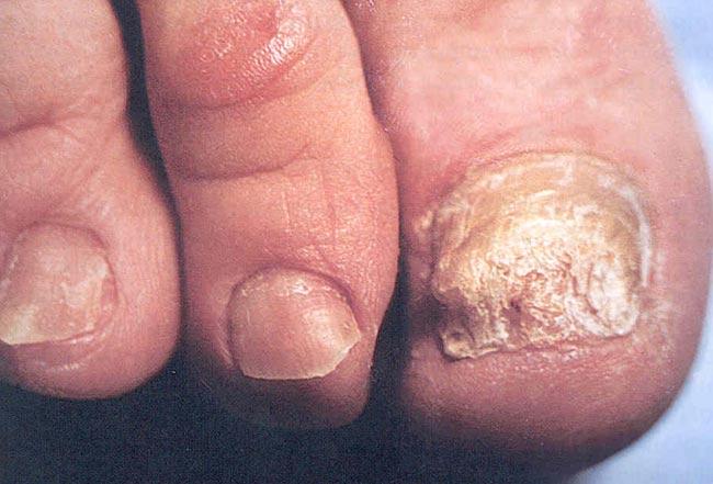 Симптомы, причины и классификация онихомикоза ногтей