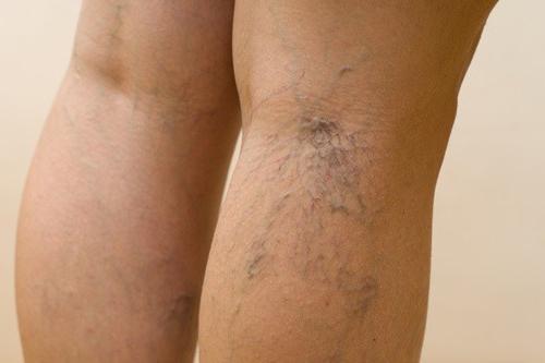 Веноплант подарит вторую молодость вашим ногам
