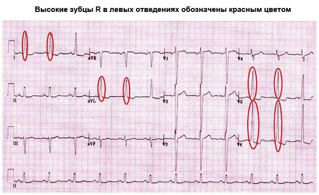 Гипертрофия левого желудочка симптомы