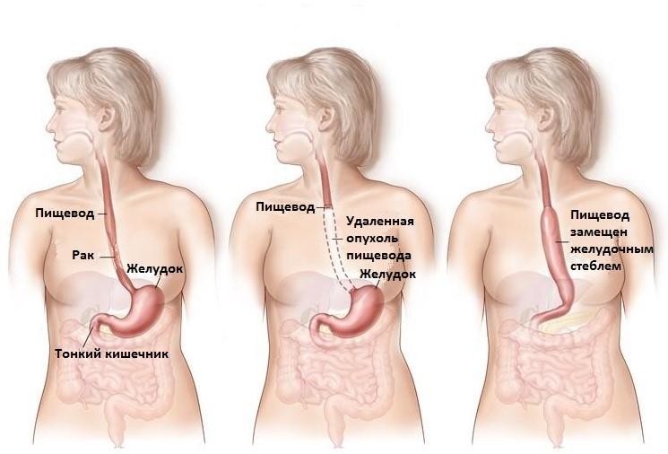 Рак пищевода и желудка что кушать