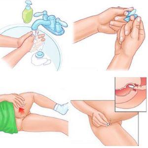 Свечи «папаверин» при беременности: инструкция по применению