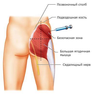Тестостерон ципионат: инструкция по применению, цена, аналоги