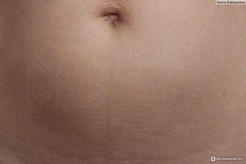 Как избавиться от растяжек после родов на груди и животе?