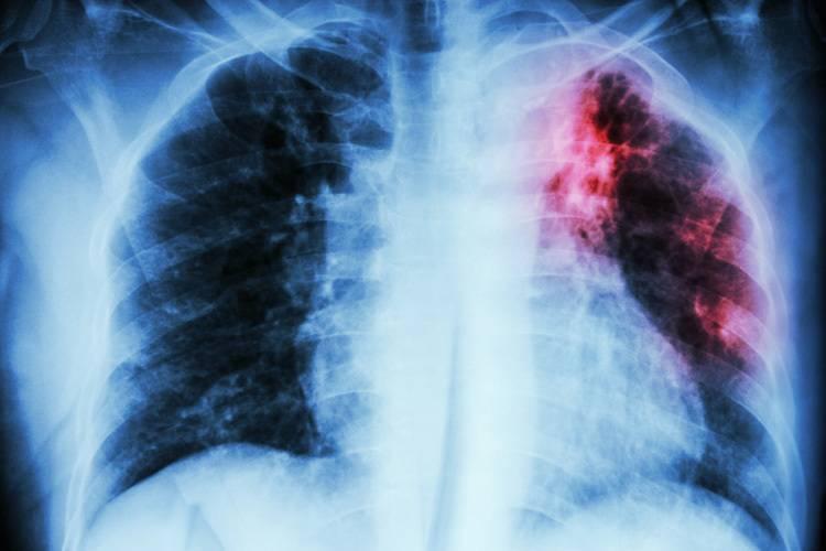 Роды после операции по туберкулезу