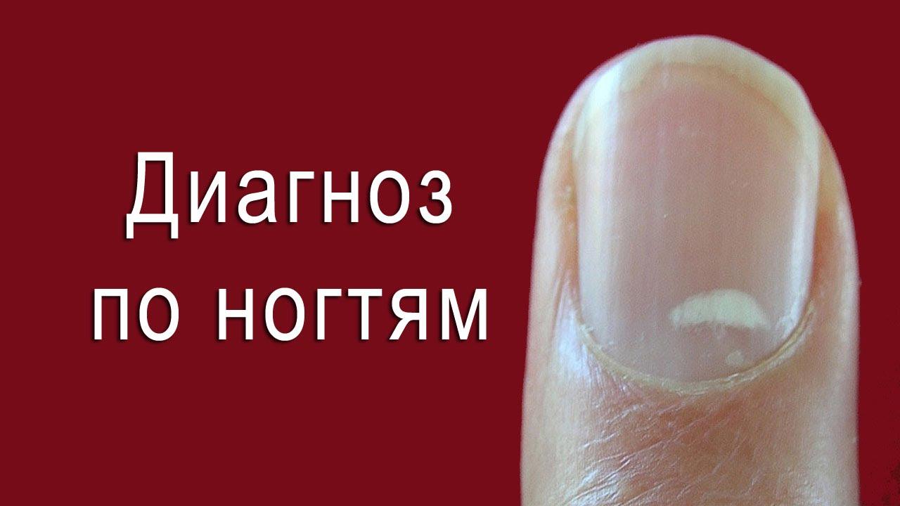Полоска на ногте большого пальца левой руки