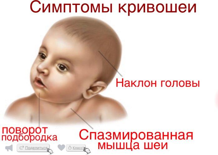 Полезная статья про кривошею - кривошея у новорожденных - запись пользователя надежда (nadya-v-k) в сообществе здоровье новорожденных в категории кривошея - babyblog.ru