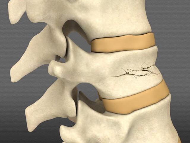 Перелом позвонка поясничного отдела: лечение, последствия и реабилитация