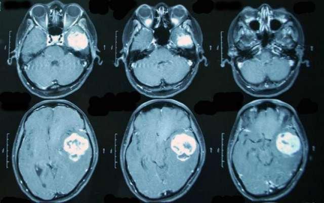 Чем опасен глиоз головного мозга