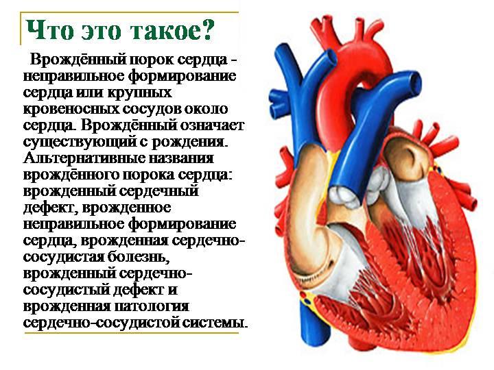Порок сердца у новорожденных: причины, диагностика и лечение