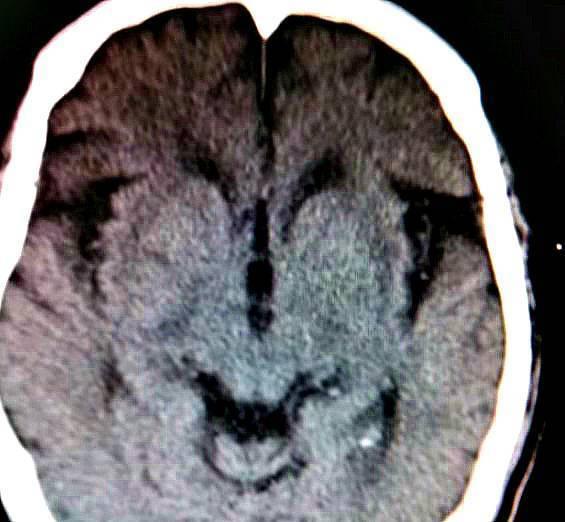 Единичные очаги глиоза лобных и теменных долей. лечение глиозных очагов в мозге. осложнения глиоза и его профилактика.