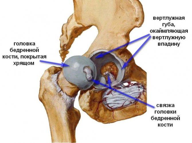 Коксартроз тазобедренного сустава 2 степени: симптомы, лечение, прогноз