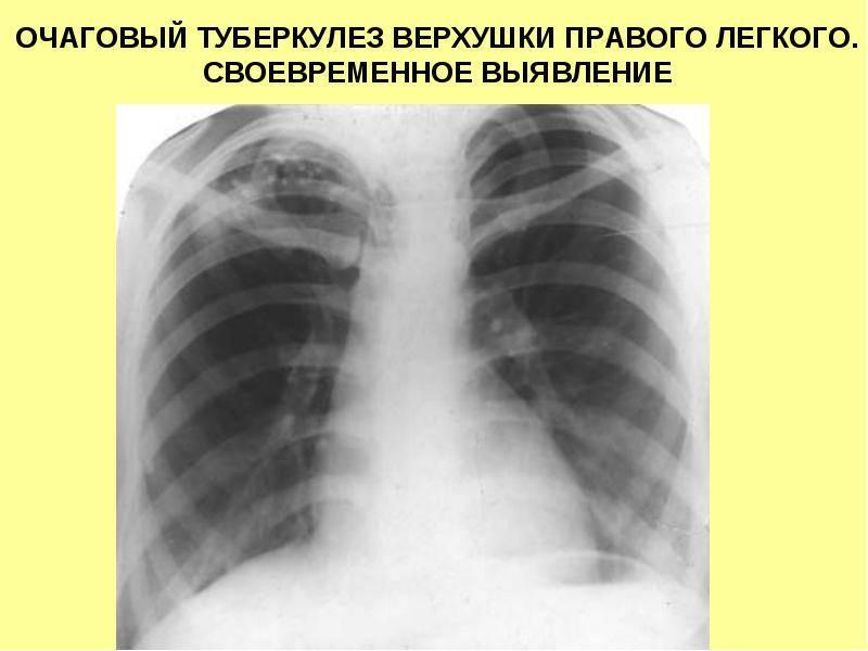 Что такое инфильтративный туберкулез легкого, заразен он или нет? симптомы, лечение, диагностика