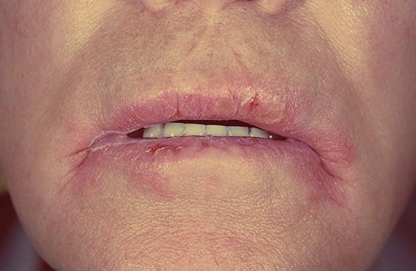 Заеды в уголках рта — фото, причины и лечение. появление ангулита у детей. причины возникновения заед