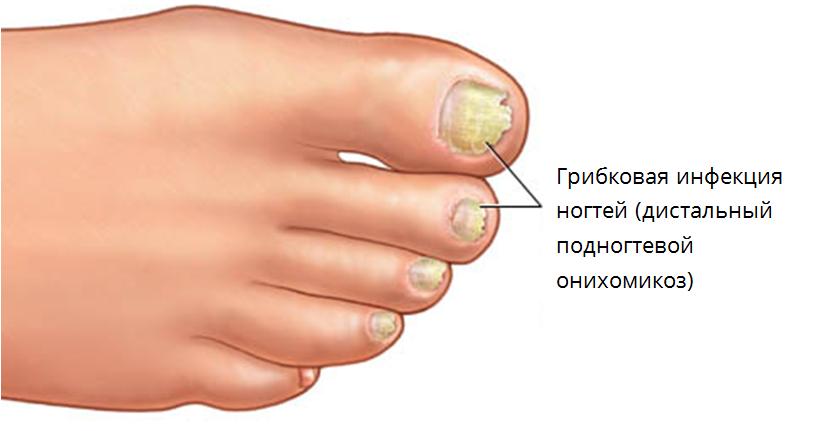 Диагностика по ногтям