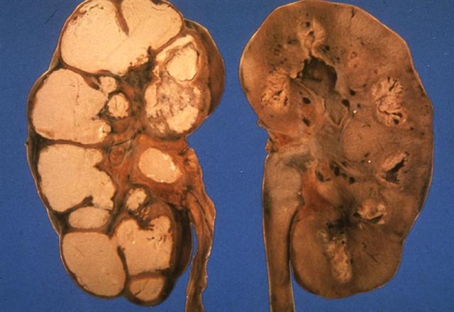 Туберкулез почек у мужчин: симптомы, диагностика, лечение, заразен или нет
