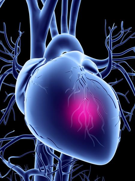 Сердечный кашель: симптомы, лечение