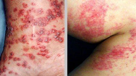 Васкулит у детей – аллергический, геморрагический. причины, симптомы, последствия. лечение
