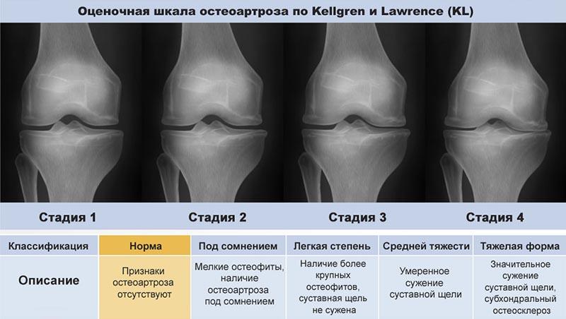 Коксартроз 3 степени: лечение тазобедренного сустава