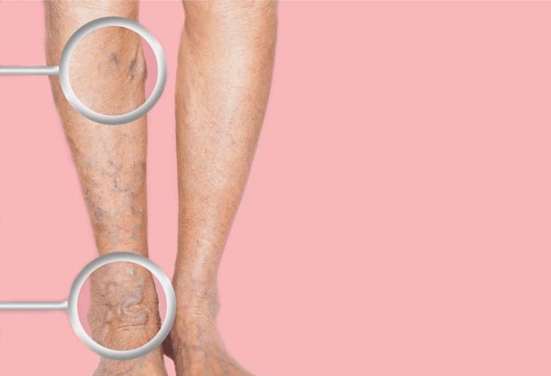Депигментация кожи: главные причины и лечение | food and health