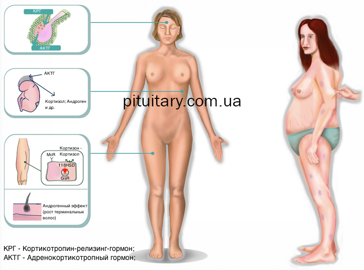 Болезнь и синдром иценко–кушинга: причины, симптомы и лечение
