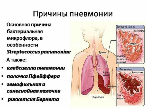 Лечение воспаления легких народными средствами – 10 рецептов - народная медицина   природушка.ру