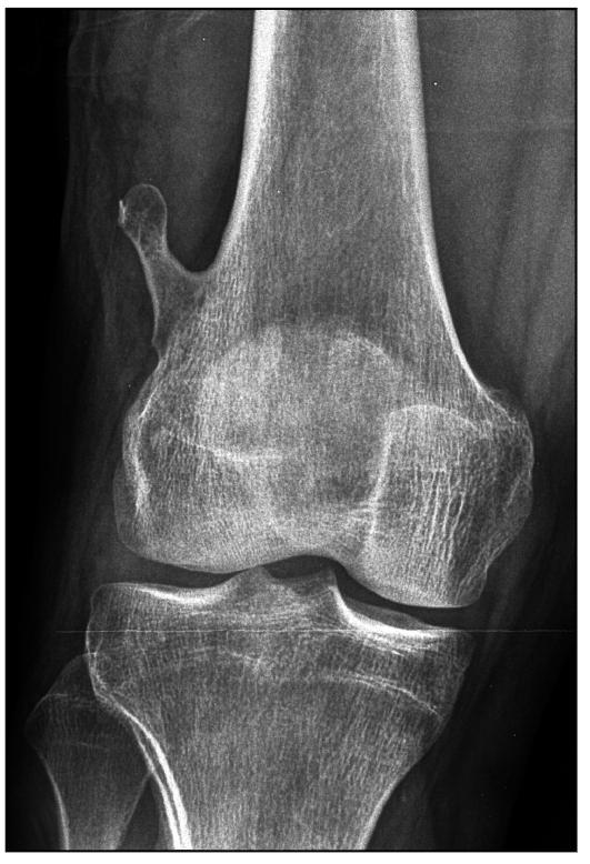 Костный экзостоз пяточной кости