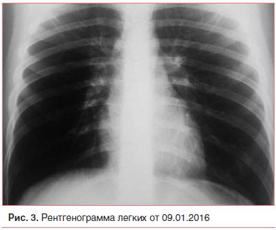 Очаговая пневмония: симптомы и лечение, осложнения