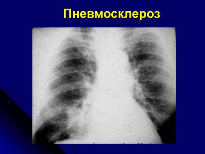 Диффузный пневмосклероз легких – что это такое, сколько живут? — симптомы
