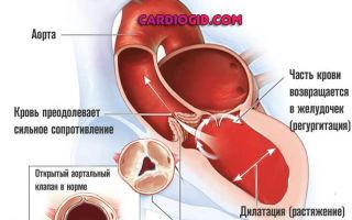 Симптомы предынфарктного состояния: как распознать и что делать