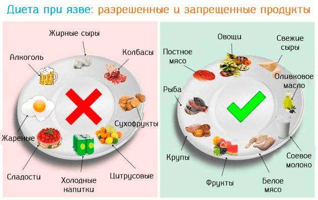 Питание после операции прободной язвы желудка