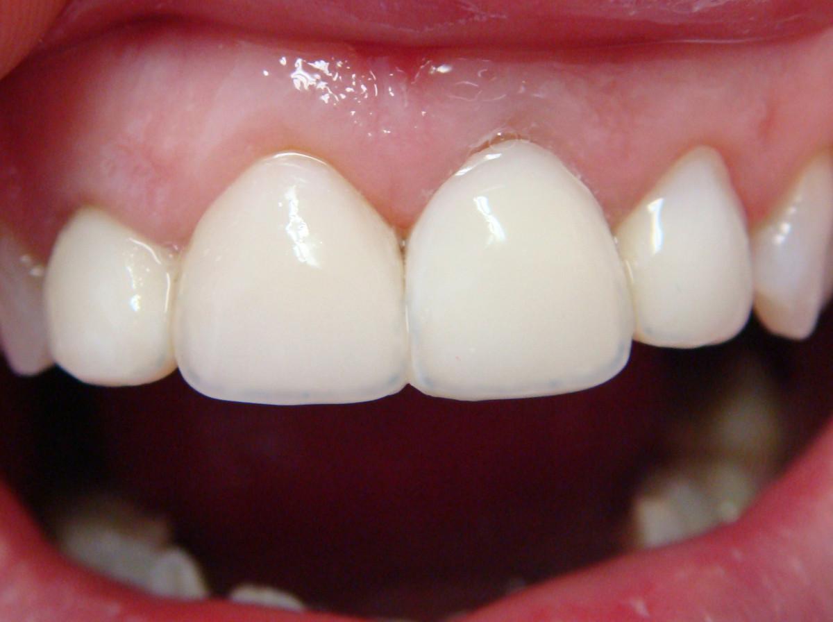 Штифты для восстановления сильно поврежденных зубов