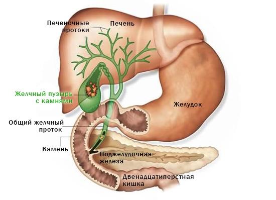 Желчнокаменная болезнь: причины, симптомы, лечение, профилактика