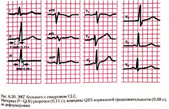 Синдром wpw пароксизмальная тахикардия