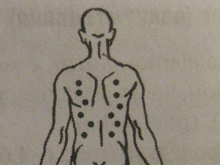 Польза и вред банок на спину, как поставить и сколько держать