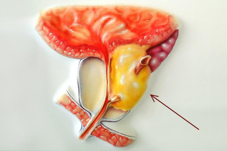 Лечение аденомы простаты - препараты и народные средства. как лечить аденому простаты у мужчин